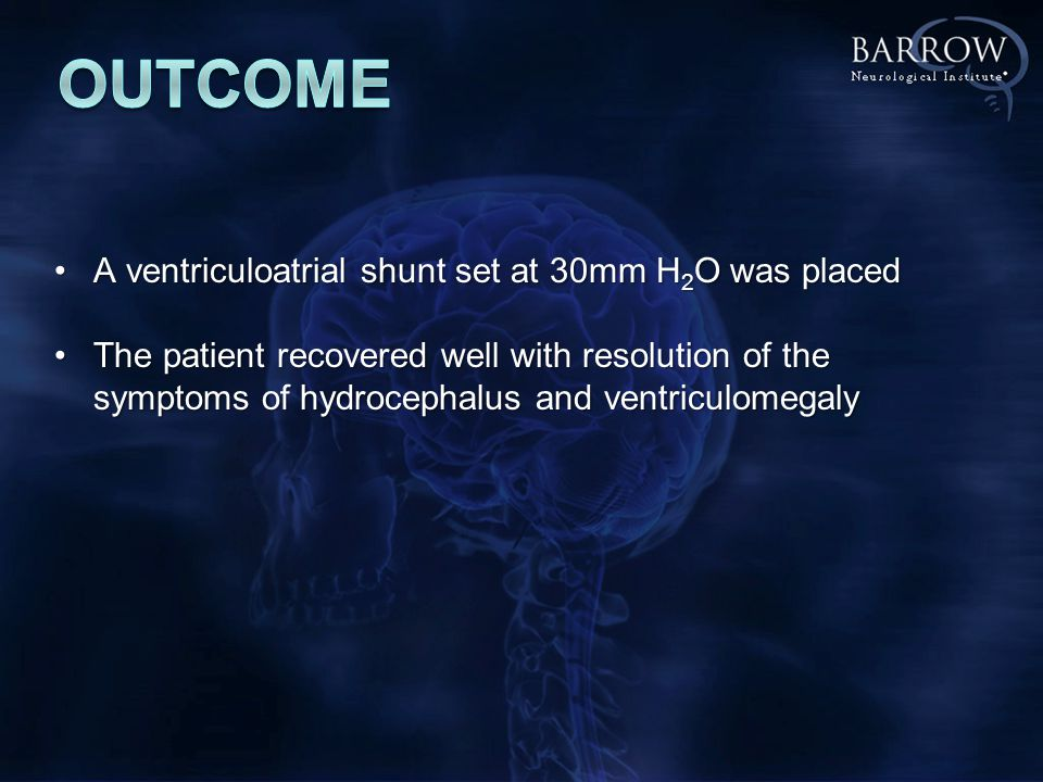 A ventriculoatrial shunt set at 30mm H 2 O was placedA ventriculoatrial shunt set at 30mm H 2 O was placed The patient recovered well with resolution of the symptoms of hydrocephalus and ventriculomegalyThe patient recovered well with resolution of the symptoms of hydrocephalus and ventriculomegaly