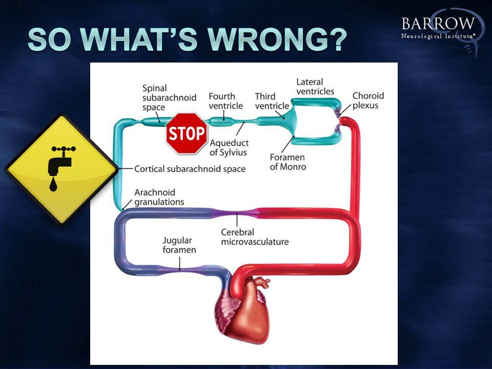 SAS Vents BRAIN LEAK Transmantle pressure = P VENTS – P SAS > 0 Transi t INITIAL EQUILIBRIUM cause P VENTS > P SAS