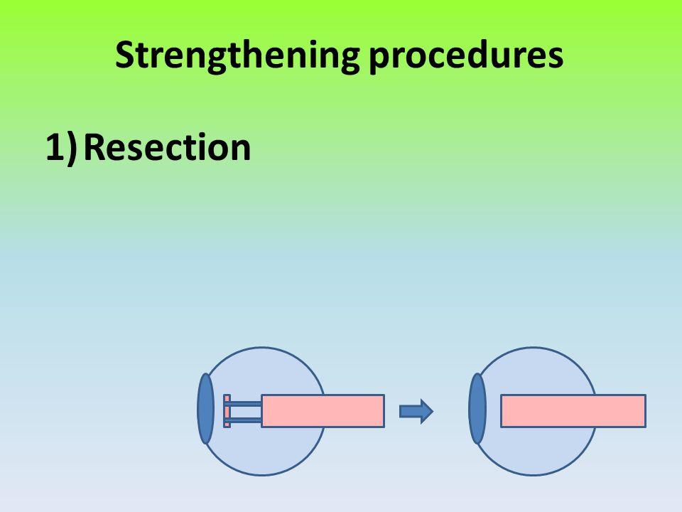 Strengthening procedures 1)Resection