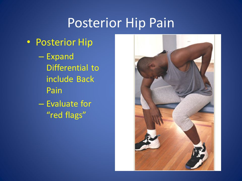 """Posterior Hip Pain Posterior Hip – Expand Differential to include Back Pain – Evaluate for """"red flags"""""""