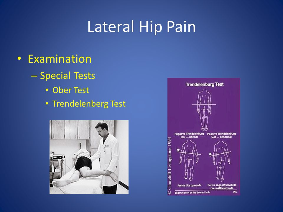 Lateral Hip Pain Examination – Special Tests Ober Test Trendelenberg Test
