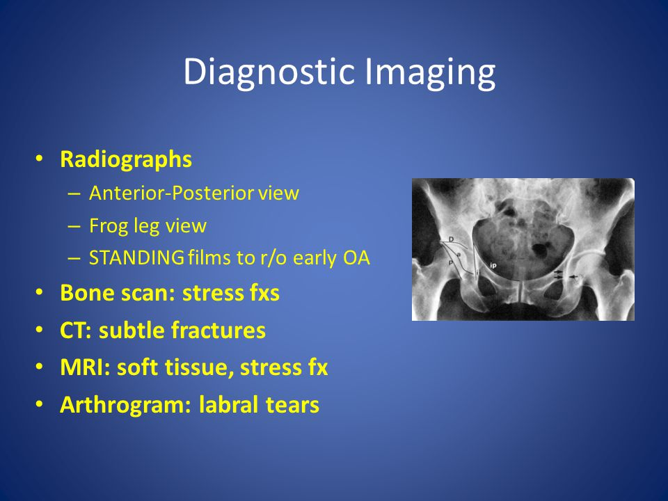 Radiographs – Anterior-Posterior view – Frog leg view – STANDING films to r/o early OA Bone scan: stress fxs CT: subtle fractures MRI: soft tissue, st