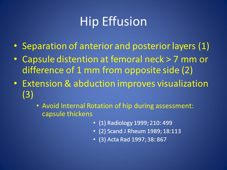 Hip Effusion Separation of anterior and posterior layers (1) Capsule distention at femoral neck > 7 mm or difference of 1 mm from opposite side (2) Ex