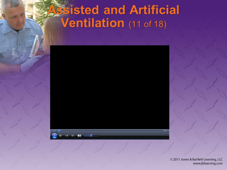 Assisted and Artificial Ventilation (11 of 18)