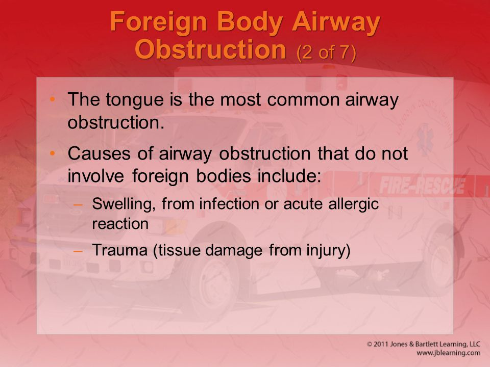 Foreign Body Airway Obstruction (2 of 7) The tongue is the most common airway obstruction. Causes of airway obstruction that do not involve foreign bo