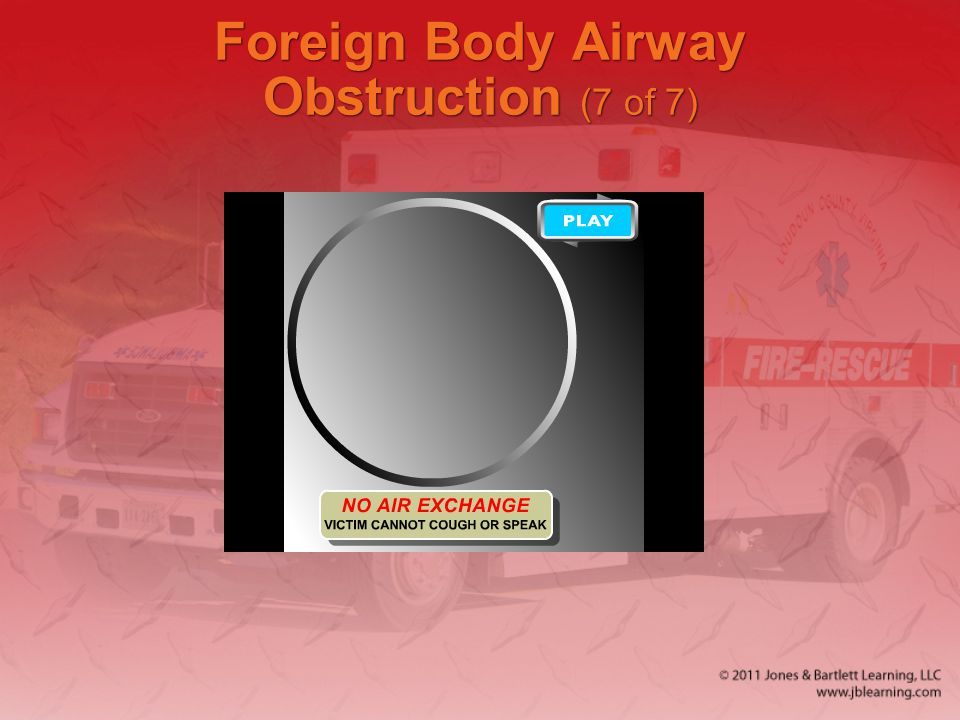 Foreign Body Airway Obstruction (7 of 7)