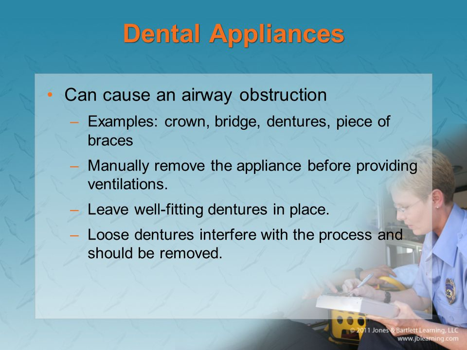 Dental Appliances Can cause an airway obstruction –Examples: crown, bridge, dentures, piece of braces –Manually remove the appliance before providing