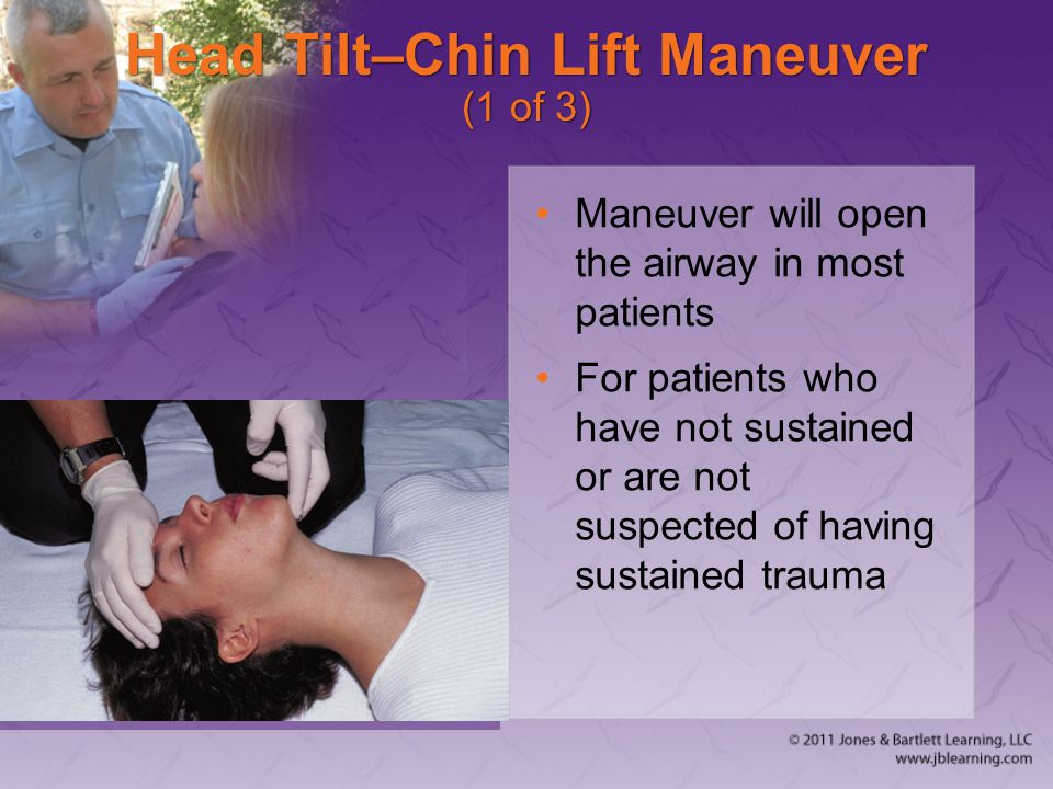 Head Tilt–Chin Lift Maneuver (1 of 3) Maneuver will open the airway in most patients For patients who have not sustained or are not suspected of havin