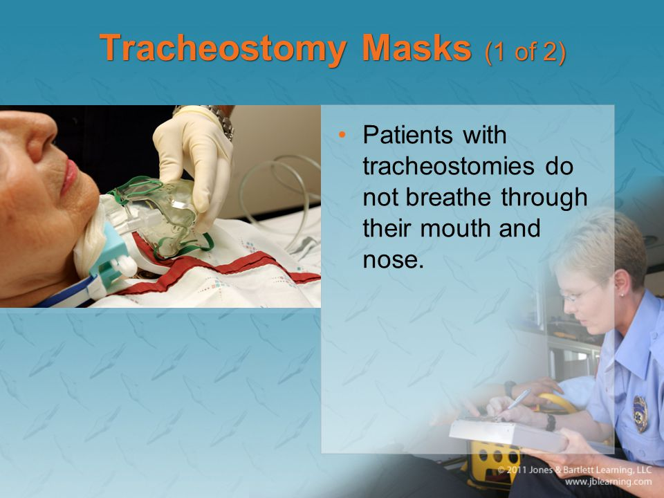 Tracheostomy Masks (1 of 2) Patients with tracheostomies do not breathe through their mouth and nose.