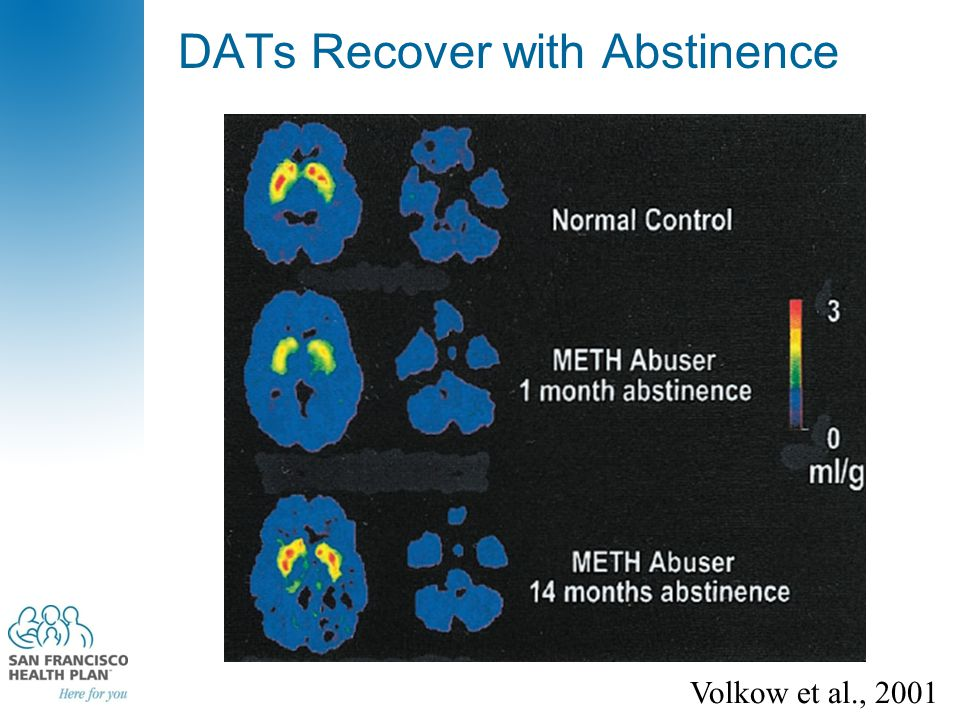 Volkow et al., 2001 DATs Recover with Abstinence