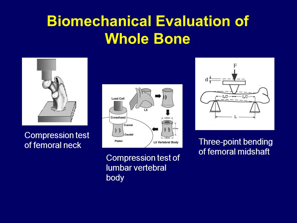 Biomechanical Evaluation of Whole Bone Compression test of femoral neck Compression test of lumbar vertebral body Three-point bending of femoral midsh