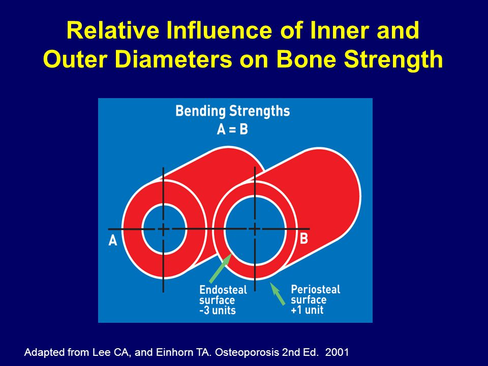Relative Influence of Inner and Outer Diameters on Bone Strength Adapted from Lee CA, and Einhorn TA. Osteoporosis 2nd Ed. 2001