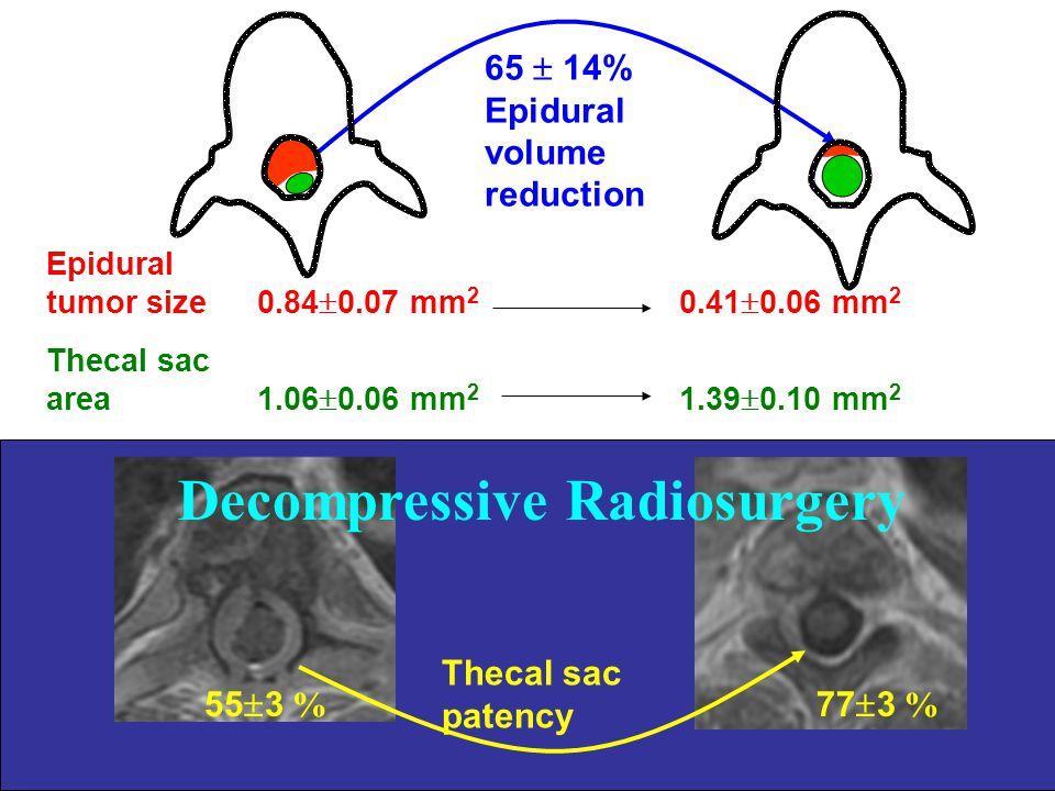 65  14% Epidural volume reduction Thecal sac patency 55  3 % 77  3 % Decompressive Radiosurgery Epidural tumor size0.84  0.07 mm 2 0.41  0.06 mm