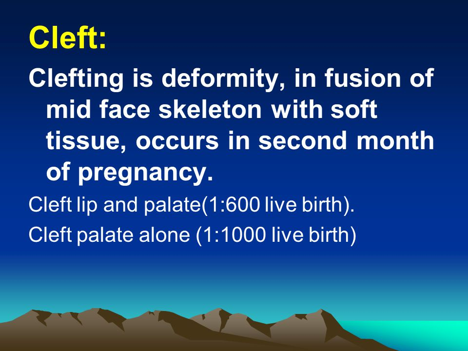 Cleft: Clefting is deformity, in fusion of mid face skeleton with soft tissue, occurs in second month of pregnancy. Cleft lip and palate(1:600 live bi