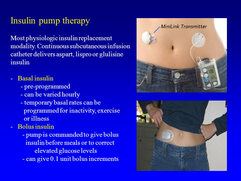 Insulin pump therapy Most physiologic insulin replacement modality.