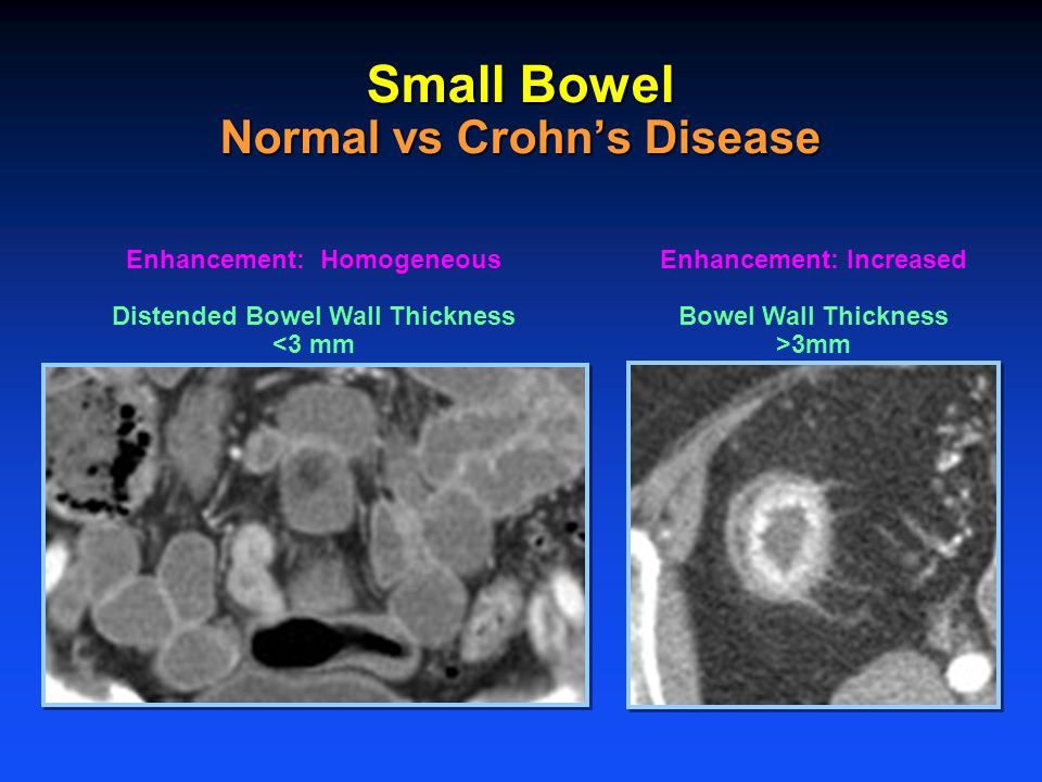 Enhancement: Homogeneous Distended Bowel Wall Thickness <3 mm Enhancement: Increased Bowel Wall Thickness >3mm Small Bowel Normal vs Crohn's Disease