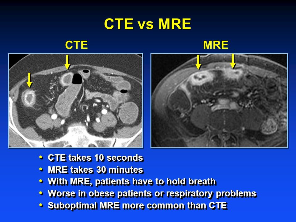 CTE takes 10 seconds CTE takes 10 seconds MRE takes 30 minutes MRE takes 30 minutes With MRE, patients have to hold breath With MRE, patients have to hold breath Worse in obese patients or respiratory problems Worse in obese patients or respiratory problems Suboptimal MRE more common than CTE Suboptimal MRE more common than CTE CTE takes 10 seconds CTE takes 10 seconds MRE takes 30 minutes MRE takes 30 minutes With MRE, patients have to hold breath With MRE, patients have to hold breath Worse in obese patients or respiratory problems Worse in obese patients or respiratory problems Suboptimal MRE more common than CTE Suboptimal MRE more common than CTE CTEMRE CTE vs MRE