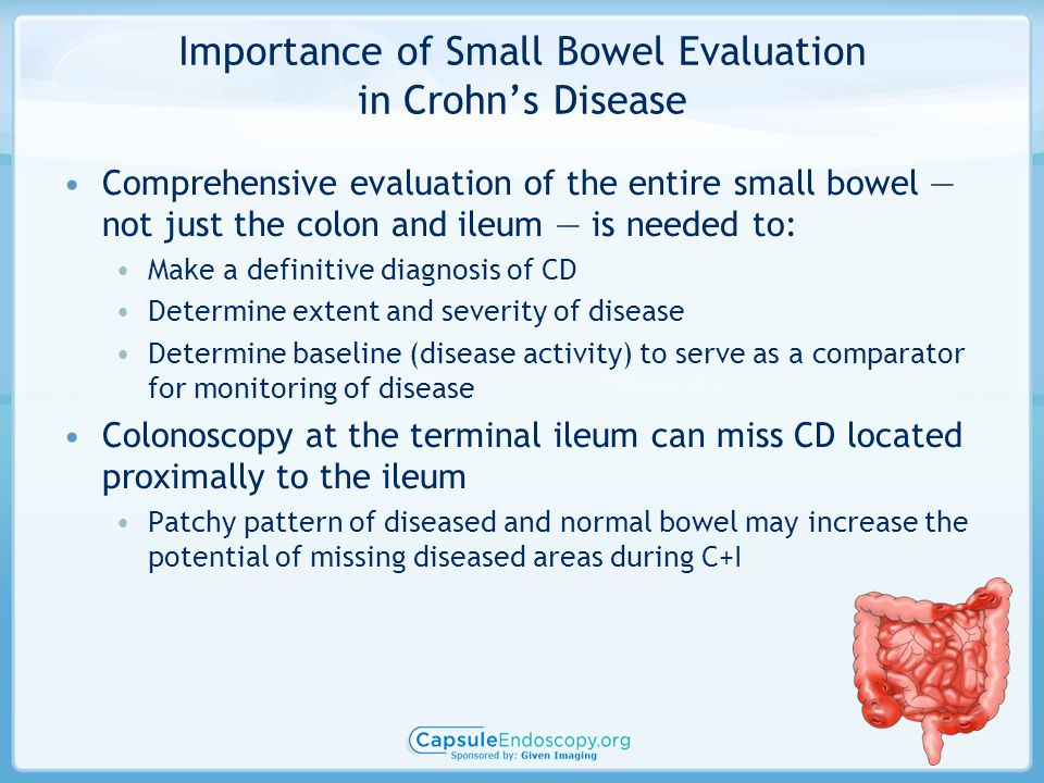 Importance of Small Bowel Evaluation in Crohn's Disease Comprehensive evaluation of the entire small bowel — not just the colon and ileum — is needed