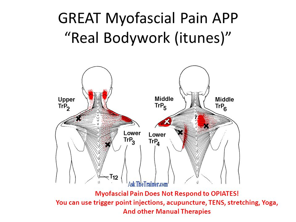 GREAT Myofascial Pain APP Real Bodywork (itunes) Myofascial Pain Does Not Respond to OPIATES.