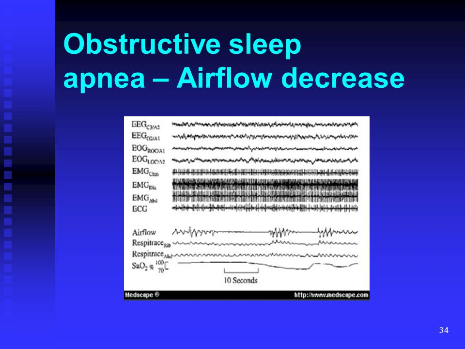 34 Obstructive sleep apnea – Airflow decrease