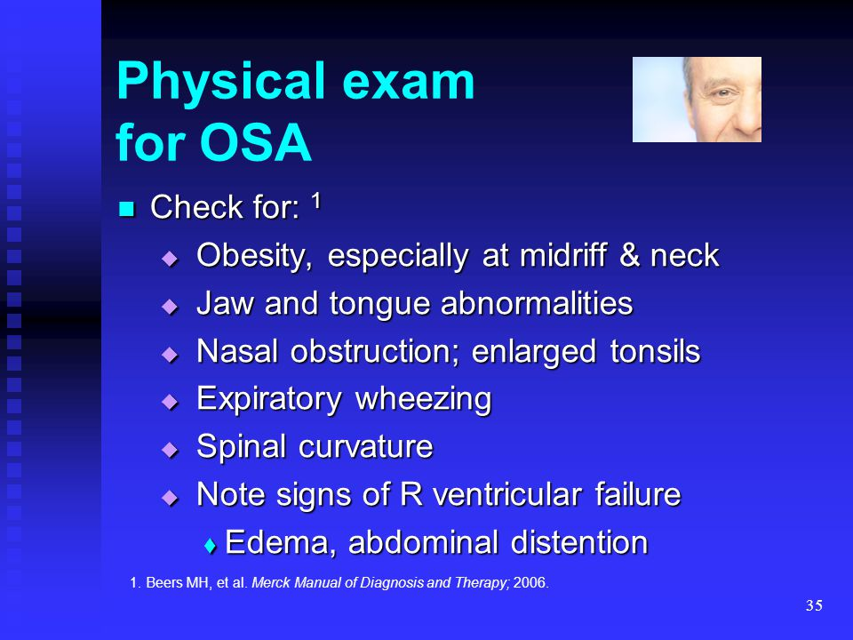 35 Physical exam for OSA Check for: 1 Check for: 1  Obesity, especially at midriff & neck  Jaw and tongue abnormalities  Nasal obstruction; enlarge