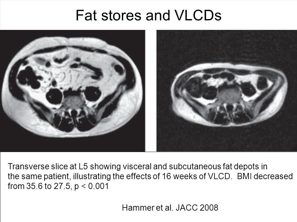 Transverse slice at L5 showing visceral and subcutaneous fat depots in the same patient, illustrating the effects of 16 weeks of VLCD. BMI decreased f