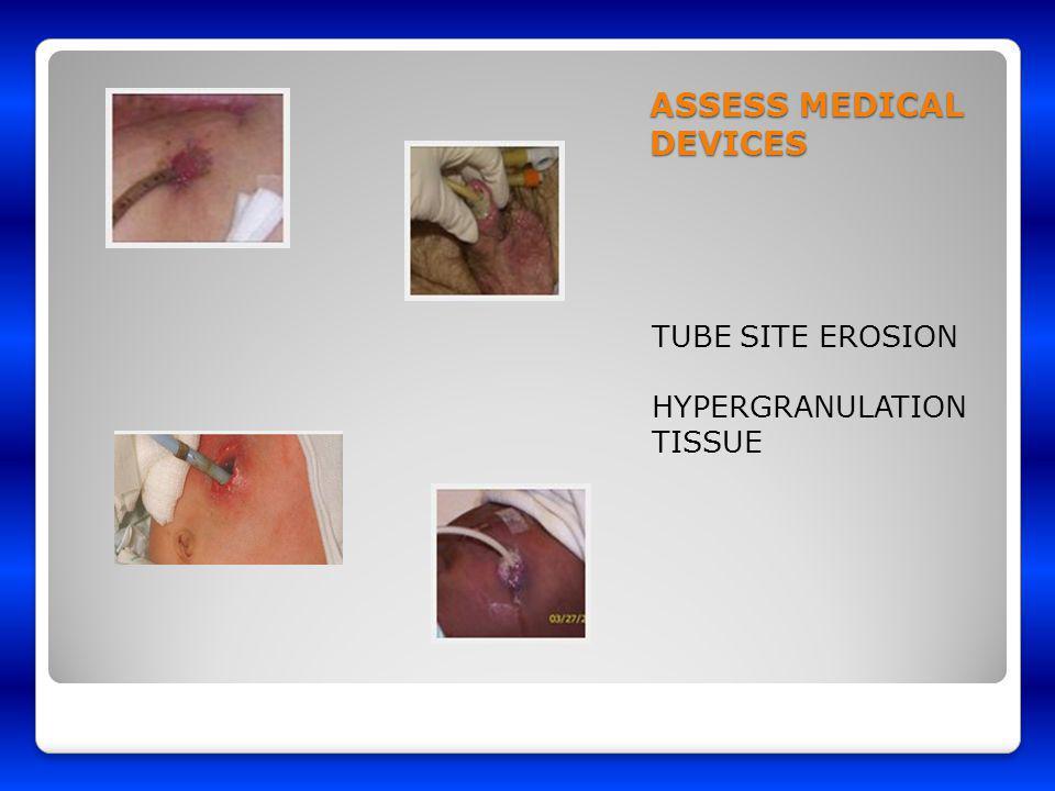 ASSESS MEDICAL DEVICES TUBE SITE EROSION HYPERGRANULATION TISSUE