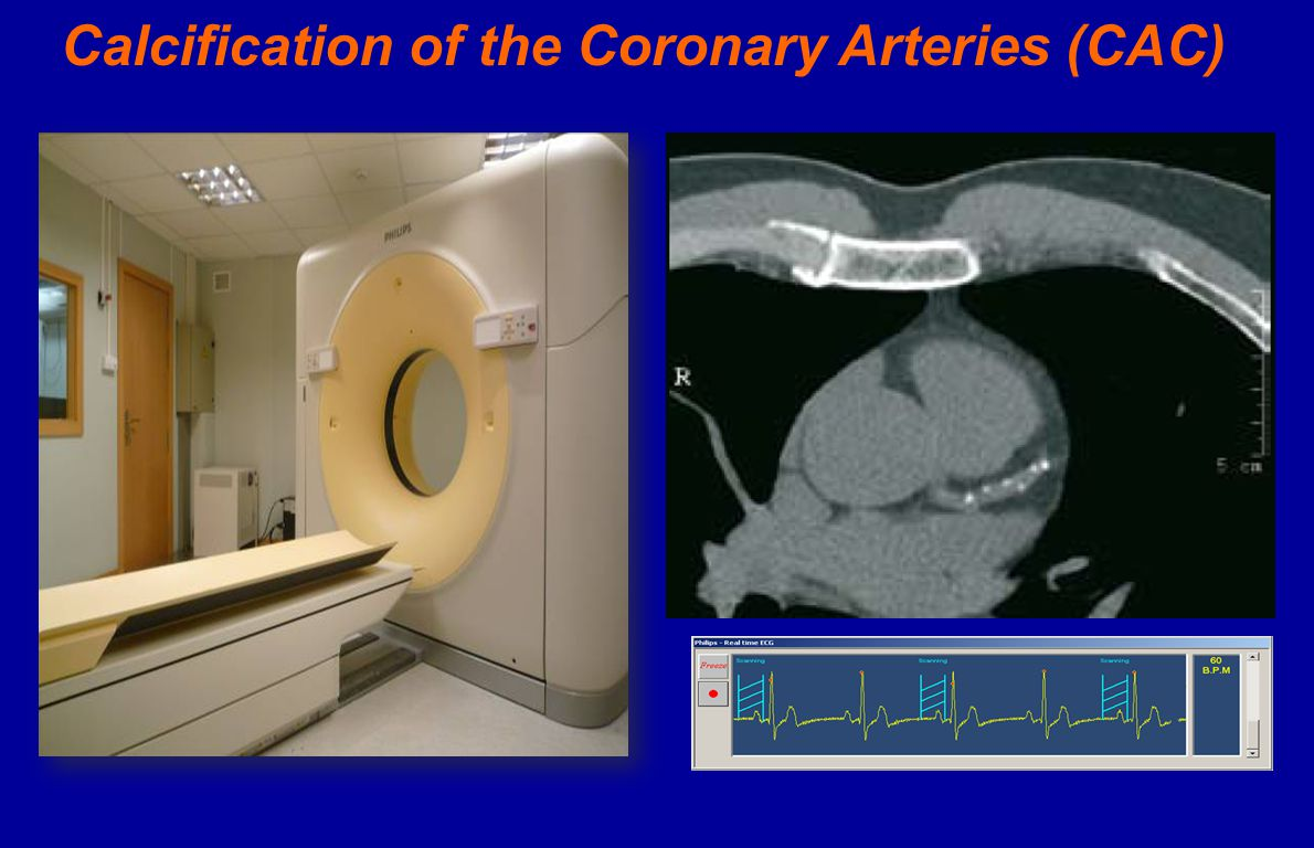 Calcification of the Coronary Arteries (CAC)