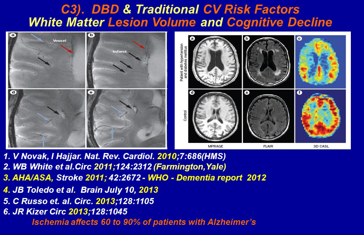 C3). DBD & Traditional CV Risk Factors White Matter Lesion Volume and Cognitive Decline 1.
