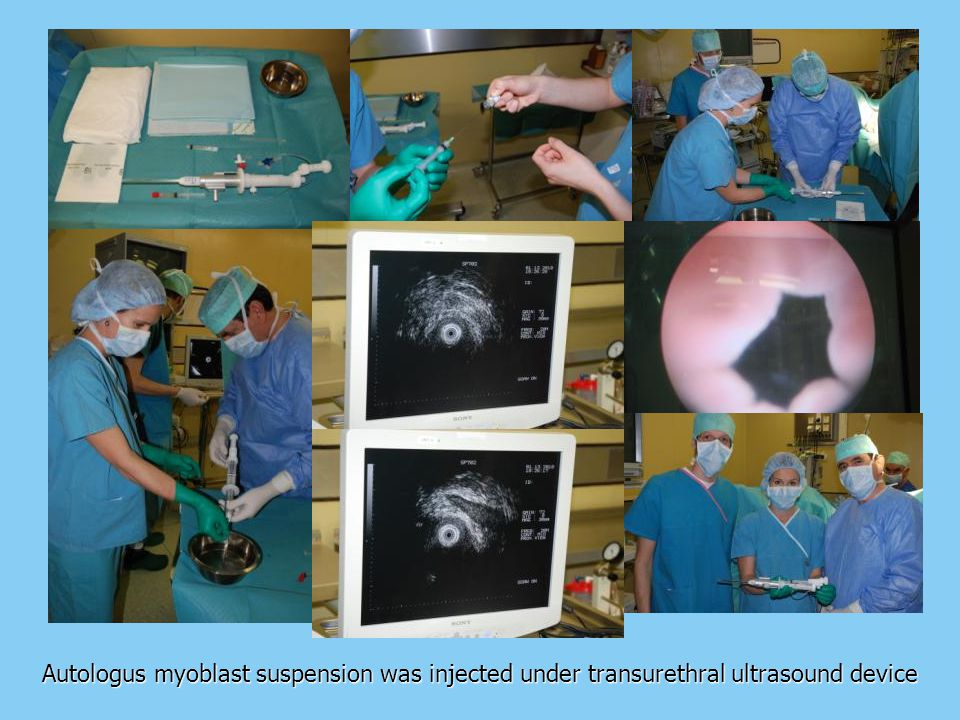 Autologus myoblast suspension was injected under transurethral ultrasound device
