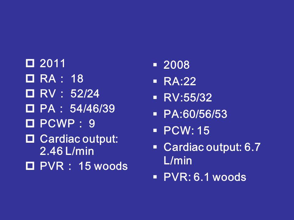  2011  RA : 18  RV : 52/24  PA : 54/46/39  PCWP : 9  Cardiac output: 2.46 L/min  PVR : 15 woods  2008  RA:22  RV:55/32  PA:60/56/53  PCW: