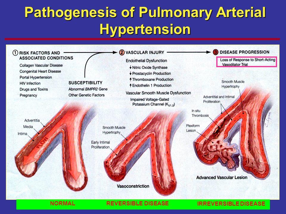 NORMAL REVERSIBLE DISEASE IRREVERSIBLE DISEASE Pathogenesis of Pulmonary Arterial Hypertension