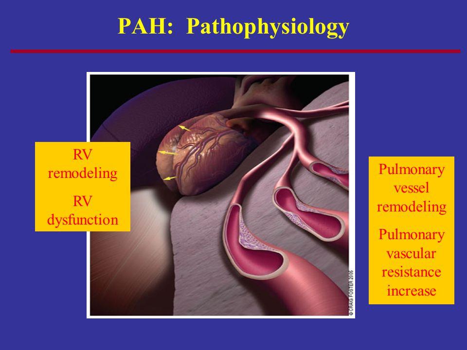 PAH: Pathophysiology Pulmonary vessel remodeling Pulmonary vascular resistance increase RV remodeling RV dysfunction