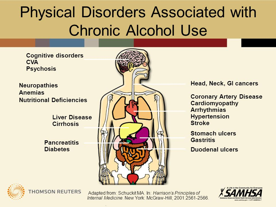Physical Disorders Associated with Chronic Alcohol Use Cognitive disorders CVA Psychosis Neuropathies Anemias Nutritional Deficiencies Liver Disease C
