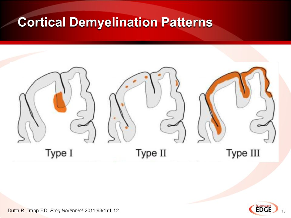 Cortical Demyelination Patterns 15 Dutta R, Trapp BD. Prog Neurobiol. 2011;93(1):1-12.