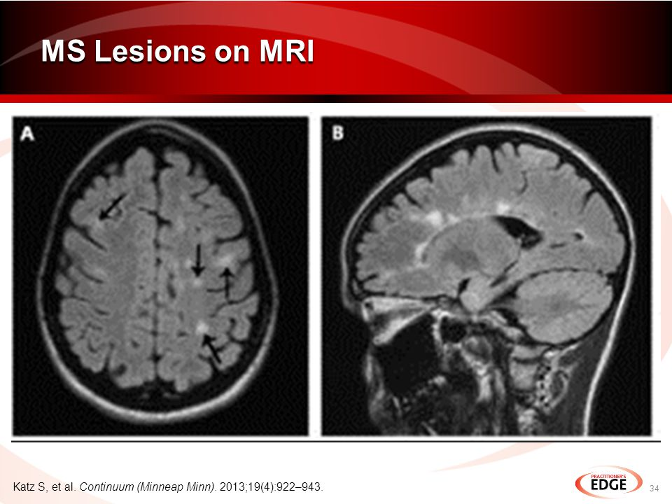 MS Lesions on MRI 34 Katz S, et al. Continuum (Minneap Minn). 2013;19(4):922–943.