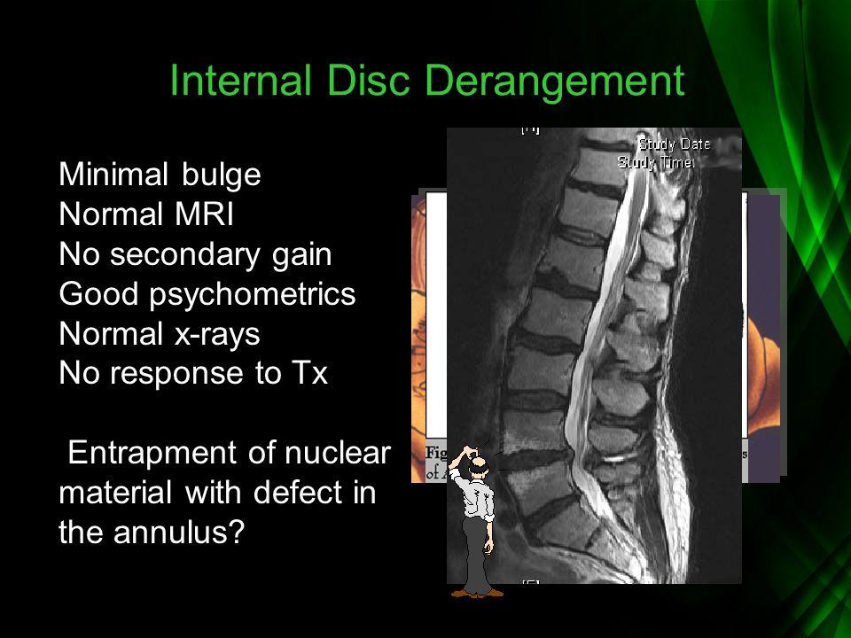 Internal Disc Derangement Minimal bulge Normal MRI No secondary gain Good psychometrics Normal x-rays No response to Tx Entrapment of nuclear material