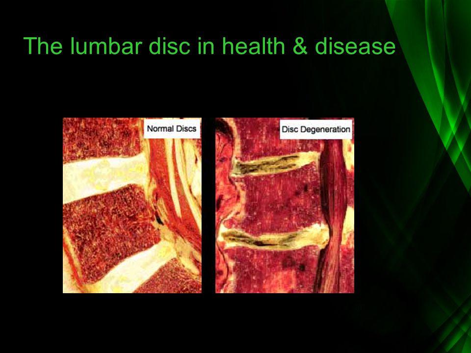 The lumbar disc in health & disease