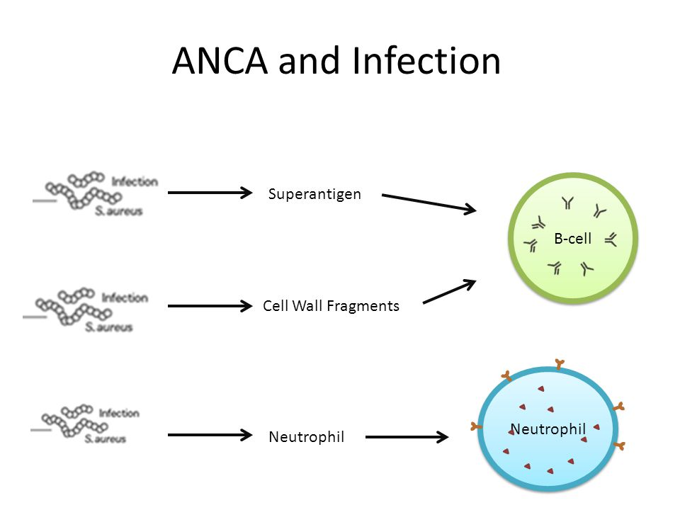 ANCA and Infection Superantigen Cell Wall Fragments Neutrophil B-cell Neutrophil