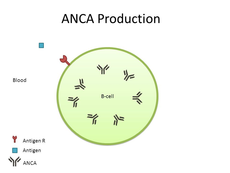 ANCA Production B-cell ANCA Antigen Blood Antigen R