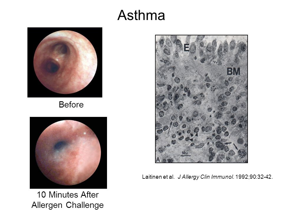 Asthma Before 10 Minutes After Allergen Challenge Laitinen et al. J Allergy Clin Immunol. 1992;90:32-42.