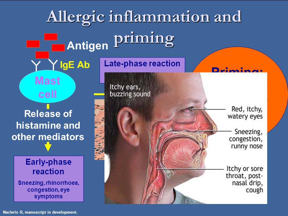 Priming: Increased responsiveness to repeated allergen exposure IgE Ab Mast cell Release of histamine and other mediators Early-phase reaction Sneezing, rhinorrhoea, congestion, eye symptoms Antigen Eosinophils Late-phase reaction Cellular Infiltration Allergic inflammation and priming Naclerio R, manuscript in development.
