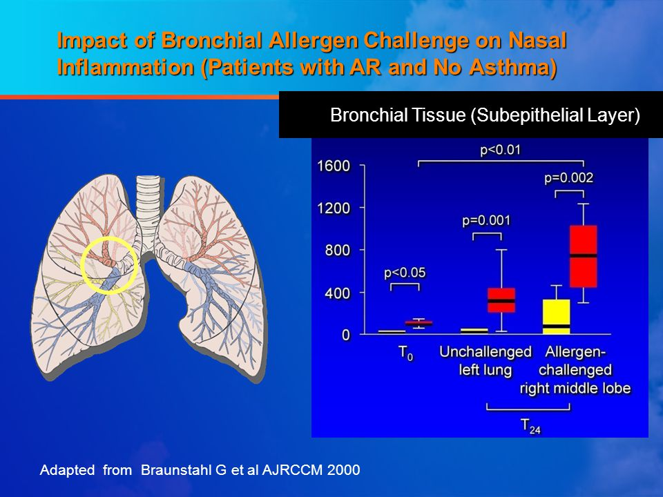 Impact of Bronchial Allergen Challenge on Nasal Inflammation (Patients with AR and No Asthma) Adapted from Braunstahl G et al AJRCCM 2000 Bronchial Tissue (Subepithelial Layer)