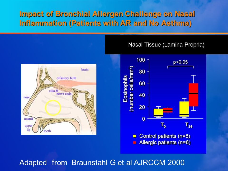 Impact of Bronchial Allergen Challenge on Nasal Inflammation (Patients with AR and No Asthma) Adapted from Braunstahl G et al AJRCCM 2000 Nasal Tissue (Lamina Propria)
