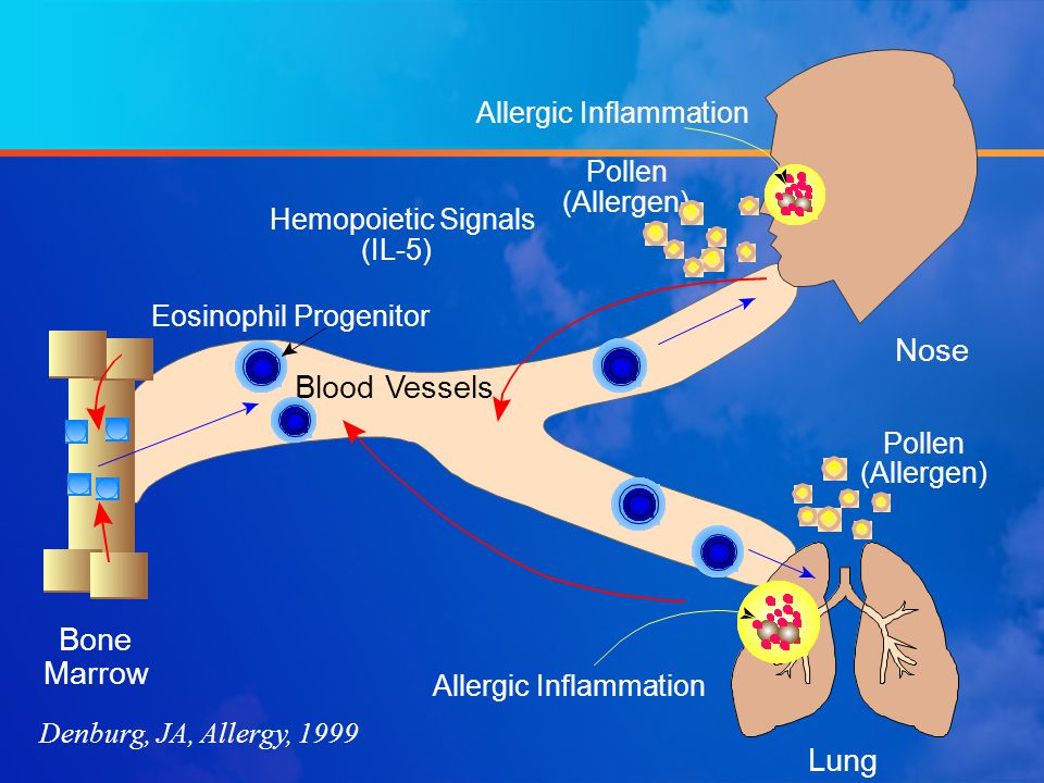 Denburg, JA, Allergy, 1999 Pollen (Allergen) Lung Bone Marrow (IL-5) Nose Pollen (Allergen) Hemopoietic Signals Blood Vessels Eosinophil Progenitor Al