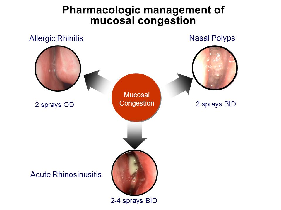 Pharmacologic management of mucosal congestion Allergic Rhinitis Nasal Polyps Acute Rhinosinusitis Mucosal Congestion 2 sprays OD 2 sprays BID 2-4 spr