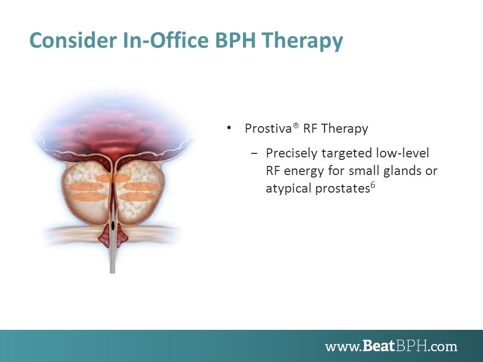 Consider In-Office BPH Therapy Prostiva® RF Therapy −Precisely targeted low-level RF energy for small glands or atypical prostates 6