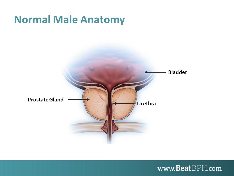 Male Anatomy with Enlarged Prostate Bladder Blocked Urethra Enlarged Prostate Gland