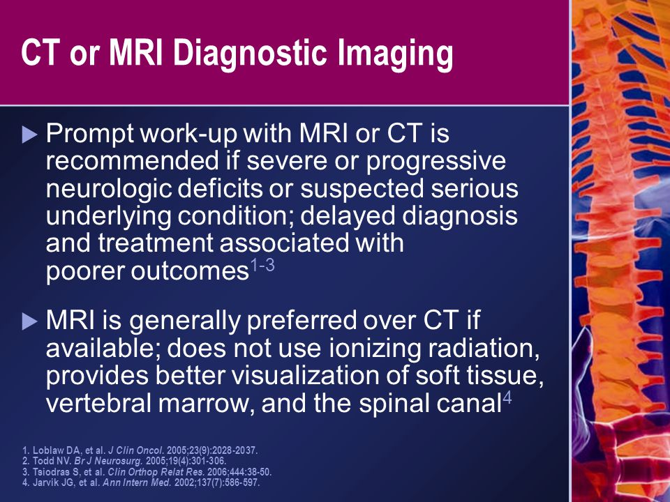 CT or MRI Diagnostic Imaging  Prompt work-up with MRI or CT is recommended if severe or progressive neurologic deficits or suspected serious underlyi