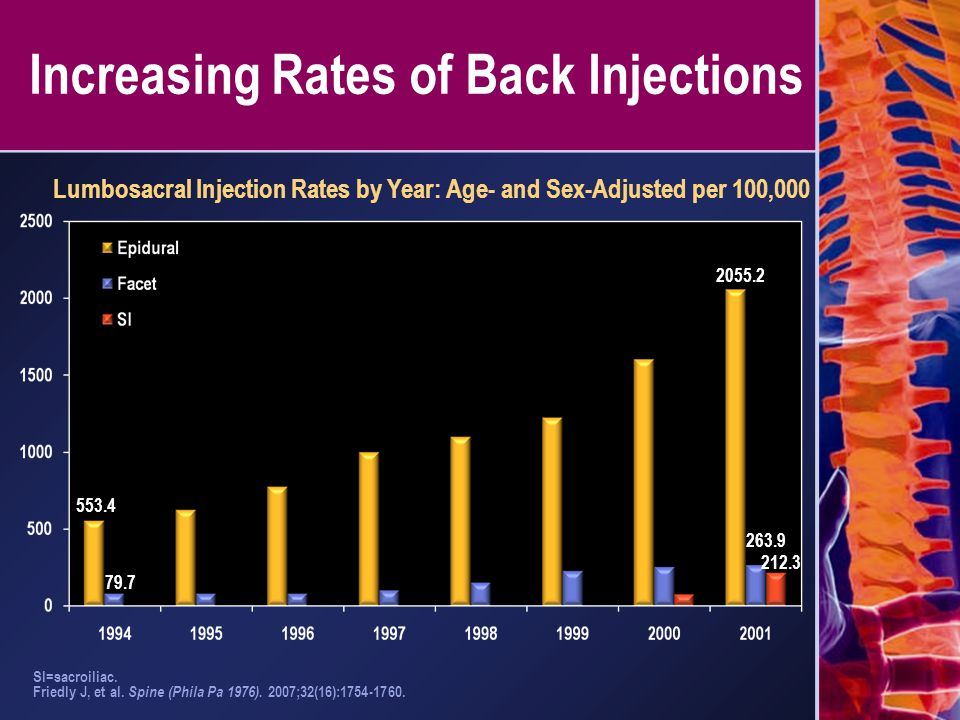 Increasing Rates of Back Injections SI=sacroiliac. Friedly J, et al. Spine (Phila Pa 1976). 2007;32(16):1754-1760. Lumbosacral Injection Rates by Year